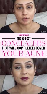 the 30 best concealers that will pletely cover your acne makeup best concealer for acne acne makeup and covering acne with makeup
