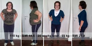 hoeveel gewichtsverlies na gastric bypass