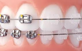 Metal Vs Clear Braces Weber Orthodontics Kansas City