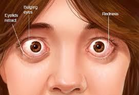 causes a feeling of pressure behind the eye