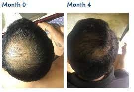 minoxidil shedding increased hair fall