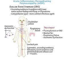 Guillain-Barré syndrome - Immunology ...