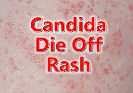 Candida Die Off Rash | Yeast Rash | Candida Rash | Candida Skin Rash ...