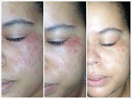 Allergic Reaction To Makeup How Treat   Cosmeticstutor.org