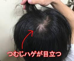 頭頂部を隠す髪型男のつむじハゲを長髪で解決する方法 経過