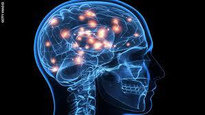 Image result for brain damage