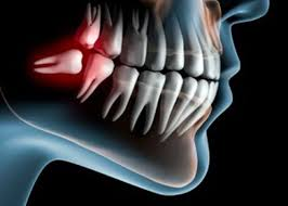 diy wisdom tooth extraction diy do it your self
