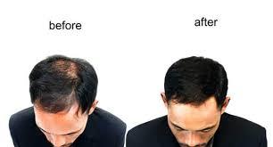 biotin supplements for hair loss