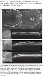 pseudophakic macular oedema