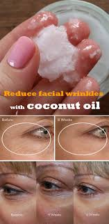 reduce wrinkles with coconut oil