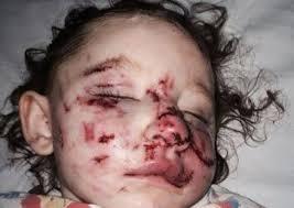 תוצאת תמונה עבור A dog attacks a child