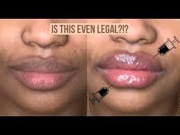 diy lip filler hack how to get plump