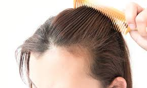 Male Or Female Pattern Baldness Treatments Cool Kaminomoto Tonic Review HairLossCauses