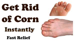 corn removal home remes for corns on toes how to get rid of corn