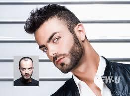 non surgical hair restoration for men rochester new york