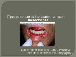 Презентация на тему Предраковые заболевания лица и полости рта  1 Предраковые заболевания лица и полости рта