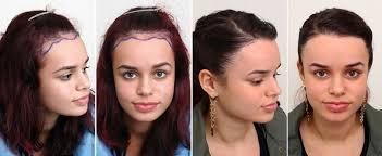 Male Pattern Baldness In Women New Female Hair Loss True Dorin Medical Group Hair Restoration