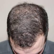 hair restoration treatment devices