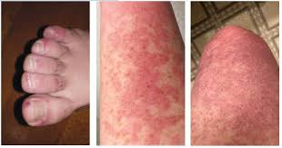 Some doctors report what's been dubbed coronavirus toes, while others report hives. Gps Watch For Potential Dermatologic Manifestation Of Covid 19 New Zealand Doctor