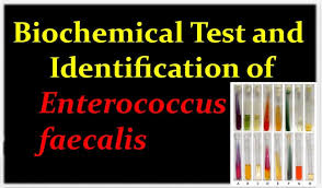 Biochemical Test Chart Identification Biochemical Test And Identification Of Enterococcus Faecalis