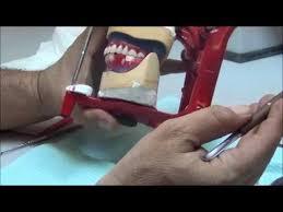 Teeth Setting 015 Complete Dentures Lab3 Setting Posterior Lower Teeth