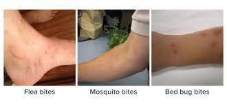 Get Flea Bites Vs Bed Bugs Images Gif
