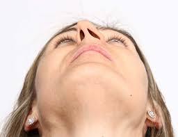 deviated septum scottsdale az sinus