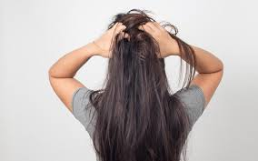 Thinning hair refers to minor to moderate hair loss. Itchy Scalp And Hair Loss What Is The Relation Between Them Skinkraft