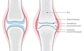 Wat betekent artrose