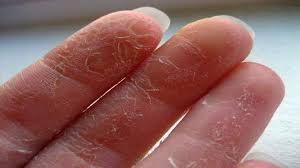 palm of hand itching and peeling