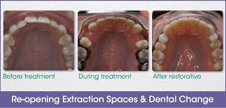 if you had permanent teeth extracted and are not happy with what happened after the braces