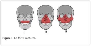 Le Fort Fracture Use Of Mandibulo Maxillary Fixation Screws For The Treatment Of