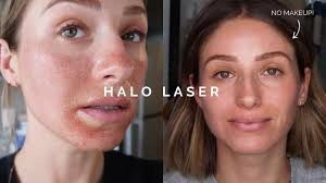 Halo Laser Treatment Before And After