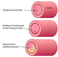 Hoe hoog mag het cholesterol zijn