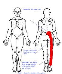 Lumbar Disc Herniation With Radiculopathy A Case Study