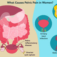 pelvic pain causes in women and men