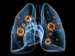 Профилактика рака легких в чем заключается методика Почему развивается заболевания