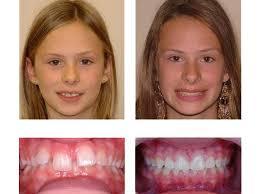 Orthodontic Treatment Ottawa Dr Ian M Milne