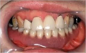 「歯肉癌」の画像検索結果