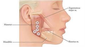 Hoofdpijn door tanden klemmen