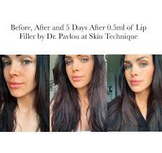lip filler with dr pavlou at skin