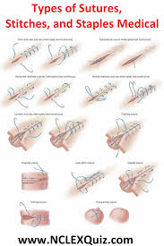 Surgical Needle Chart Surgical Stitches