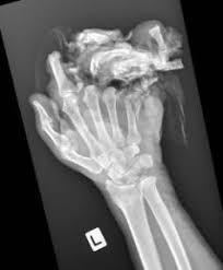 chainsaw accident. mashed hand: an x-ray of the hand ross macdonald, who lost chainsaw accident /
