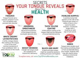 Tongue Analysis Chart Find Out What Your Tongue Is Telling You The Whoot