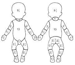 Rule Of Nines Chart Child Paediatric Emergency Medicine