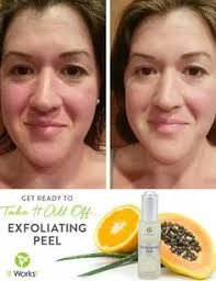 it works exfoliating peel before and after loving the new it works facial peel text me for more info 817 889
