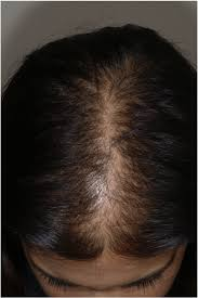 They occur when the skin around your hair follicles becomes inflamed and weakens the hair root, making you more vulnerable to hereditary hair loss. Female Pattern Hair Loss A Middle Aged Woman With A Noticeably Widened Download Scientific Diagram