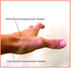 tendonitis wrist pain relief