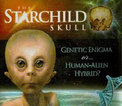 The Starchild Project, ETs