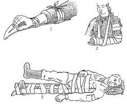 Первая помощь при травмах Снаряжение Охотники ру рисунок Марат Величко